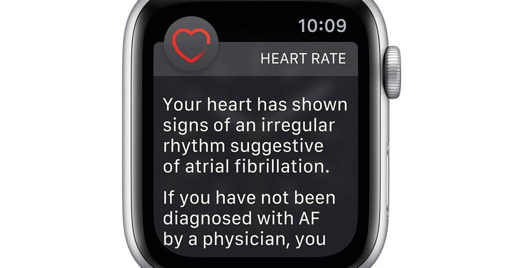 Apple Watch has just started an ECG monitor