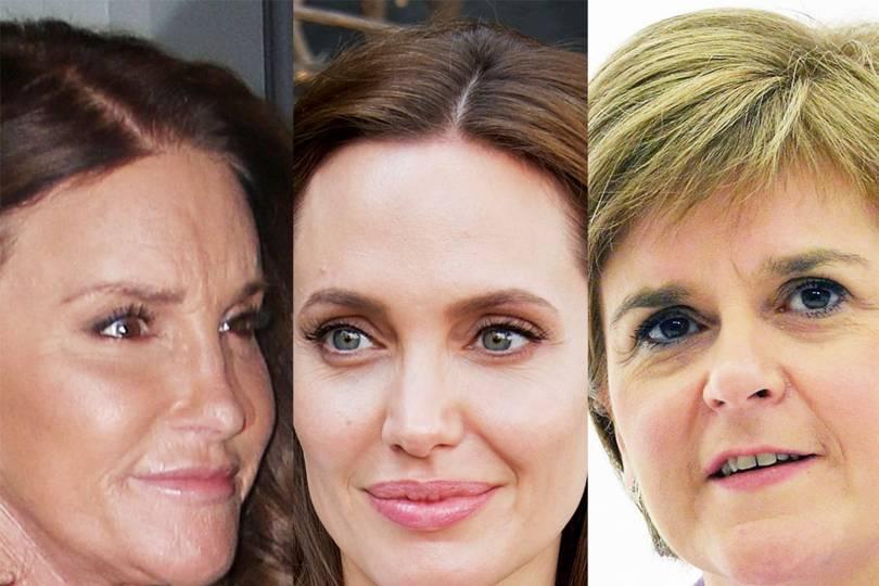 Elective mastectomy celebrity apprentice
